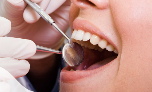 Straighter Whiter Teeth: How To Get The Perfect Smile