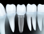 dental implants Delray Beach