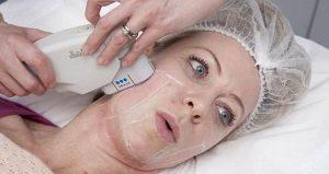 Why You Should Invest In Laser Skin Rejuvenation In Miami